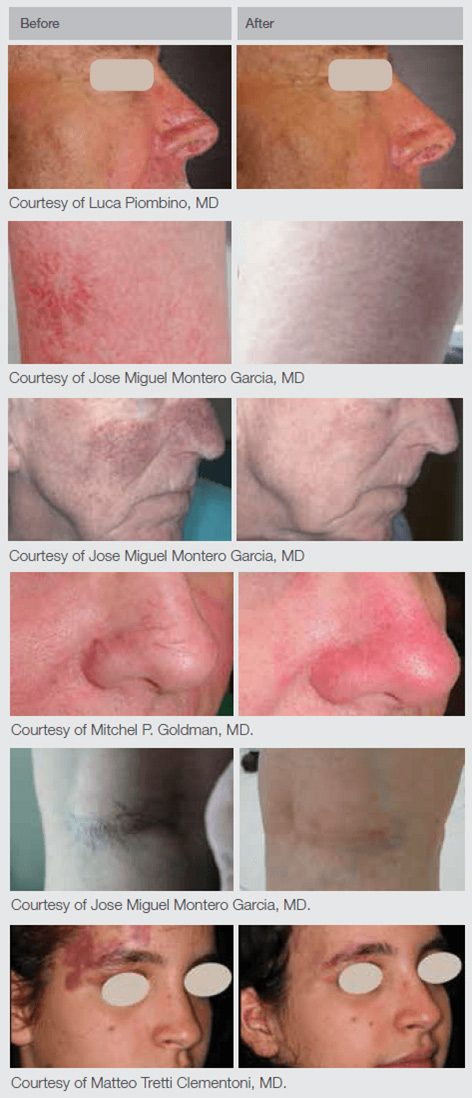 Nd:YAg Laser Skin Treatment Before & After Shots
