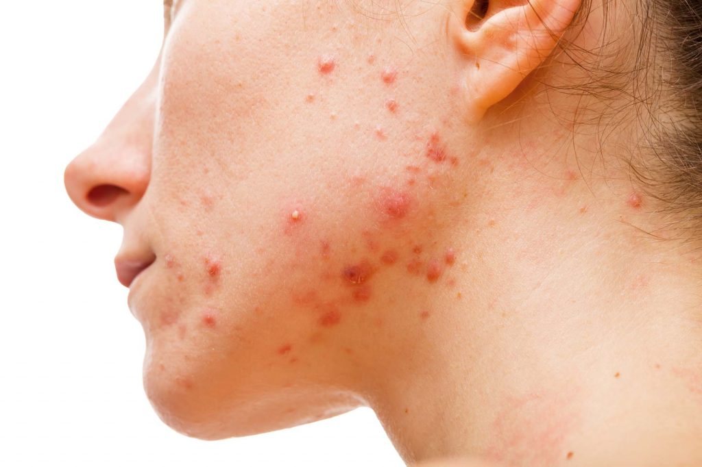 Acne Treatment Rockhampton