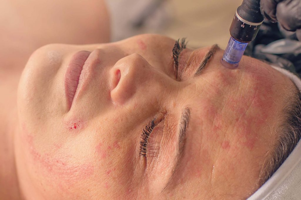 Micro-needling Skin Treatments Rockhampton