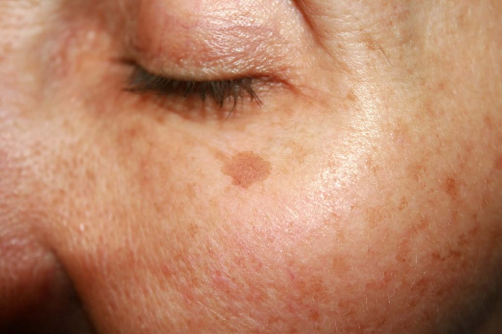 Skin Pigmentation Treatment Rockhampton